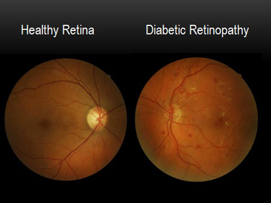 Retinopathy at Global Eye Hospital
